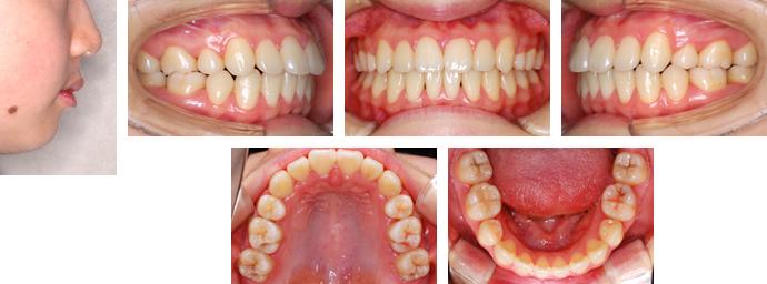 上顎前突 Case4:歯性上顎前突(永久歯列期:小学校高学年~中学生) <治療前... 上顎前突